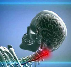 Гипоплазия правой и левой позвоночной артерии – причины развития, симптомы и лечение