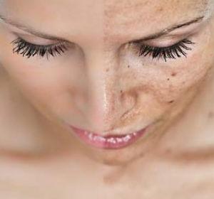 Все причины и эффективное лечение образовавшихся на лице пигментных пятен