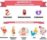 Молочница у мужчин — причины, симптомы и лечение