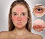 Ринофима носа: виды, причины, симптомы и лечение