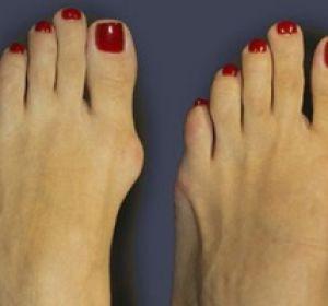 Причины образования и лечение шишек на ногах