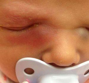Признаки дакриоцистита в хронической и острой форме у ребенка или взрослого