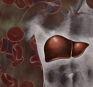 Симптомы лекарственного гепатита — диагностика, методы лечения
