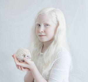 Альбинизм: что это, виды, причины, симптомы и лечение
