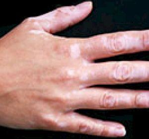 Витилиго – что это, механизм развития, проявления на коже и терапия