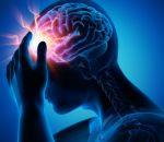 Что такое микроинсульт: симптомы и лечение