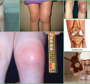 Лечение посттравматического артроза коленного сустава: лечебные методы и средства