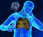 Кашель курильщика — причины, симптомы, лечение, как избавиться