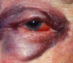 Контузия глаза: причины, степени, симптомы и лечение