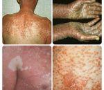 Болезнь Девержи: причины, признаки, симптомы, лечение