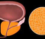 Признаки простатита и аденомы простаты у мужчин — проявление заболевания, методы терапии