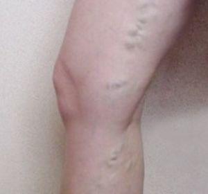 Диагностика и способы лечения тромбофлебита нижних конечностей