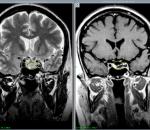 Нейросифилис — причины, признаки, симптомы и лечение