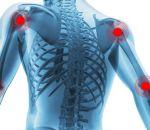 Хрустят суставы по всему телу у ребенка и взрослого: причины и лечение