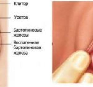 Можно ли вылечить бартолинит без операции в домашних условиях