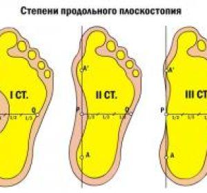 Симптомы плоскостопия 3 степени — как проявляется продольный и поперечный