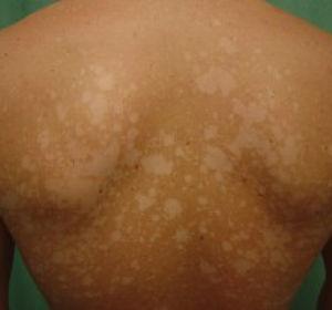 Пигментные пятна на спине — причины и способы лечения