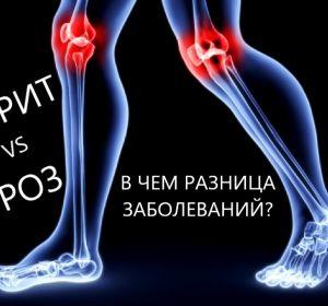 Антибиотики при артрозе и артрите для лечения суставов