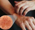 Дисгидроз: виды, причины, симптомы (+фото) и лечение