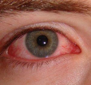Хламидийный конъюнктивит: причины, симптомы, лечение офтальмохламидиоза
