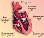 Гипертрофическая кардиомиопатия — признаки и симптомы, медикаментозное и хирургическое лечение