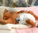Учащенное дыхание: причины у ребенка и взрослого, лечение