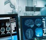 Диагностика бокового амиотрофического склероза — анализы, исследования
