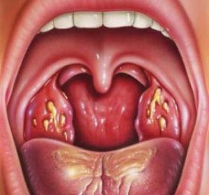 Как вылечить тонзиллит в хронической форме: разновидности лечения.