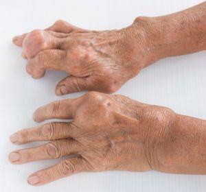 Гиперхолестеринемия – что это такое, признаки и проявления, как лечить диетой и народными средствами