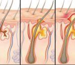 Абсцесс почки — формы, причины, симптомы и лечение