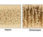 Симптомы и способы лечения диффузного остеопороза