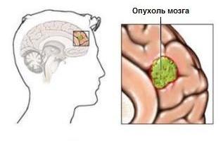Астроцитома является опухолью головного мозга.