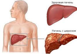Болезнь Вильсона Коновалова поражает внутренние органы.