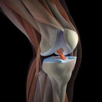 Боль в колене изнутри