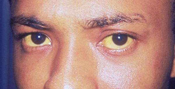 Пожелтевшие белки глаз