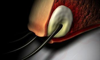 Внутренний ячменя на глазу