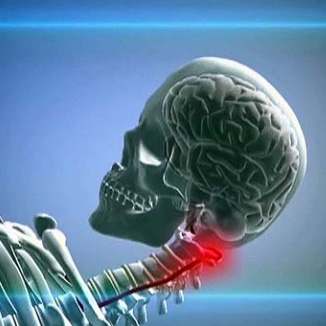 Гипоплазия правой и левой позвоночной артерии: симптомы и лечение