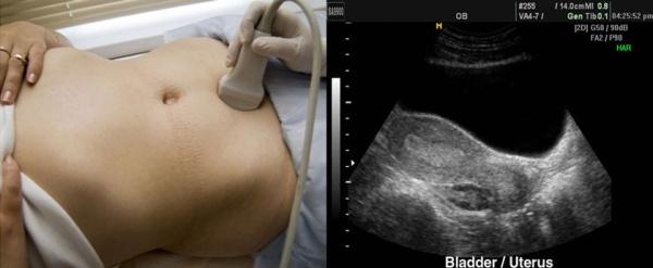Боль в копчике при сидении и вставании лечение у женщин