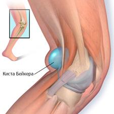 Боль в колене с внутренней стороны – причины и как ее снять