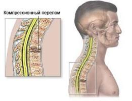 Что делать при компрессионном переломе позвоночника.