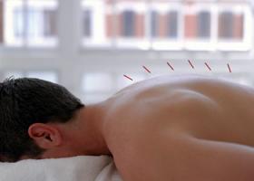 Иглоукалывания - лечение остеохондроза.