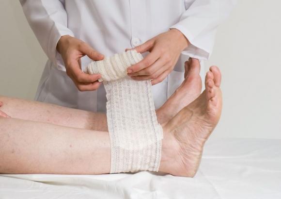 Лечение трофических язв на ногах