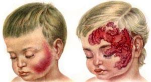 Осложнения гемангиомы