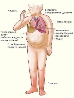 Последствия заболевания
