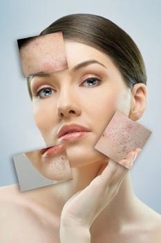 Проблемы кожи