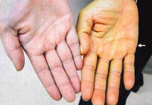 Внешние признаки болезни печени