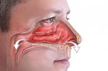 Причина болей головы в области лба