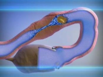 Воспаление яичников