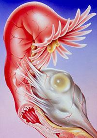 Возбудитель гидросальпинкса