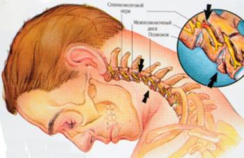 Причины гипоплазии
